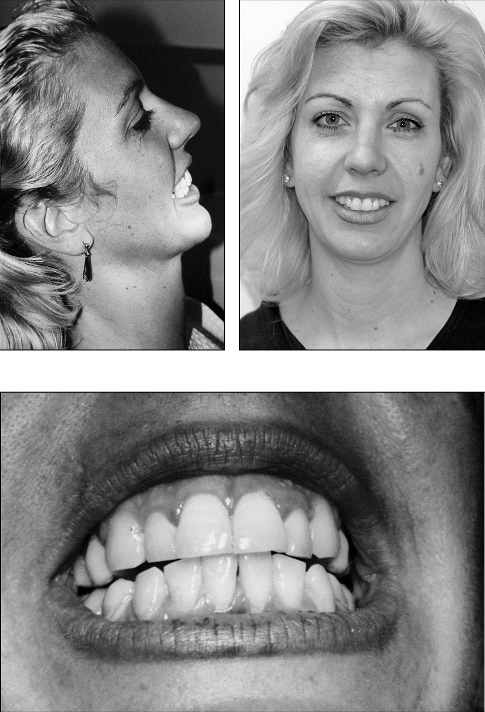 breathing airway dental cranial fat-soluble vitamins A D E K2 Dr. Weston A. Price Daniel Garliner muscles TMJ eruption pathology deformities palate tongue swallowing thrust bite orthodontic